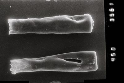 <i><i>Conochitina claviformis</i></i><br />Ohesaare borehole, 294.16 m, Jaagarahu Stage ( 754-808)