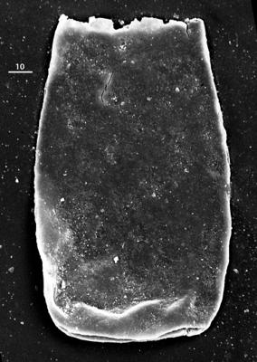 <i><i>Bursachitina</i> | Bursachitina sp.</i><br />Aispute 41 borehole, 971.15 m, lower Silurian ( 345-14)