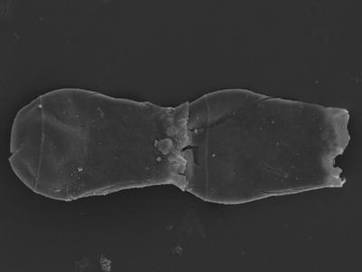 <i><i>Cingulochitina crassa</i></i><br />Kolka 54 borehole, 462.20 m, Jaagarahu Stage ( 754-1234)