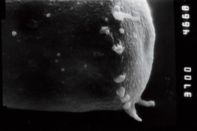 <i><i>Spinachitina</i> | Spinachitina cf. maennili</i><br />Puikule 42 borehole, 340.30 m, Adavere Stage ( 754-1104)