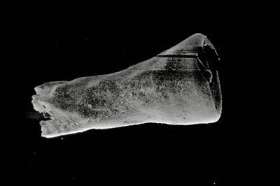 <i><i>Conochitina latifrons</i></i><br />Kolka 54 borehole, 303.80 m, Paadla Stage ( 754-734)