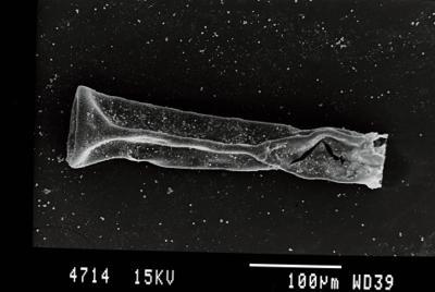 <i><i>Belonechitina latifrons</i> | Belonechitina aff. latifrons</i><br />Gussev 1 borehole, Kaliningrad oblast, 1388.60 m, Paadla Stage ( 754-73)