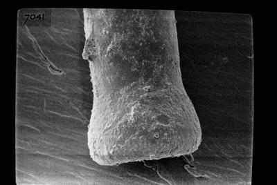 <i><i>Conochitina</i>   Conochitina claviformis Eisenack, 1931</i><br />Kihnu 526 borehole, 176.80 m, Jaani Stage ( 754-835)