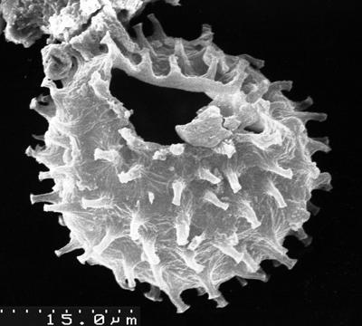 Stelliferidium furcatum (Deunff, 1961) Deunff, Gorka and Rauscher, 1974, TUG 1536-24