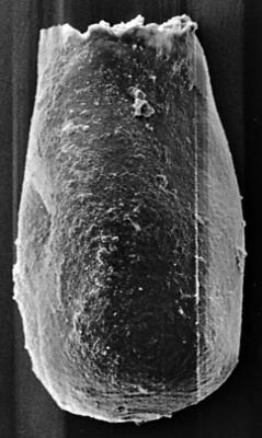<i><i>Chitinozoa</i> | Conochitina aff. sp. 7, Nestor, 1994</i><br />Ohesaare borehole, 222.50 m, Jaagarahu Stage ( 272-147)