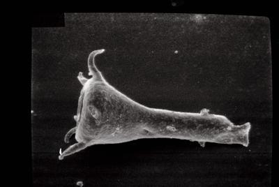 <i><i>Ancyrochitina primitiva</i> | Ancyrochitina aff. primitiva</i><br />Varbla 502 borehole, 135.10 m, Adavere Stage ( 754-104)