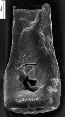 <i><i>Conochitina subcyatha</i></i><br />Ikla borehole, 225.00 m, Jaagarahu Stage ( 350-29)