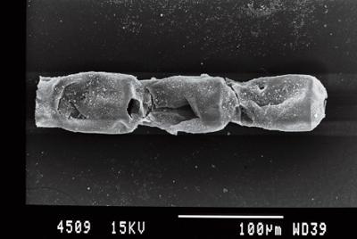 <i><i>Cingulochitina baltica</i> | Cingulochitina baltica?</i><br />Gussev 1 borehole, Kaliningrad oblast, 1478.10 m, Rootsiküla Stage ( 754-8)