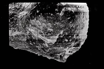 <i><i>Ancyrochitina</i> | Ancyrochitina sp.</i><br />Ruhnu 500 borehole, 344.50 m, Jaagarahu Stage ( 754-665)