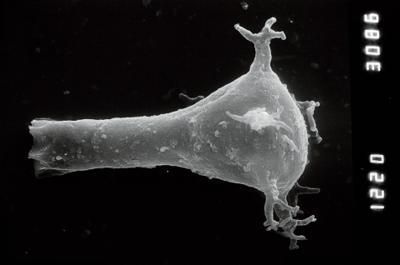 <i><i>Ancyrochitina laevaensis</i></i><br />Nagli 106 borehole, 676.00 m, Juuru Stage ( 754-905)