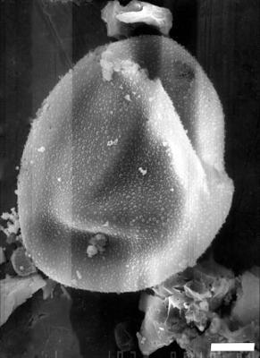 Lophosphaeridium disparipelliculum Playford et Martin, 1984, GIT 344-166