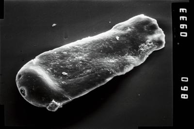 <i><i>Conochitina</i>   Conochitina aff. protracta (Zaslavskaya, 1980</i><br />Ruhnu 500 borehole, 493.40 m, Raikküla Stage ( 754-1023)