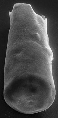 <i><i>Chitinozoa</i> | Conochitina cf. argillophila Laufeld, 1974</i><br />Ohesaare borehole, 169.50 m, Jaagarahu Stage ( 272-66)