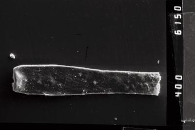 <i><i>Conochitina claviformis</i></i><br />Ventspils D-3 borehole, 655.00 m, Ludlow ( 754-957)