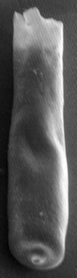 <i><i>Conochitina praeproboscifera</i></i><br />Varbla 502 borehole, 160.15 m, Adavere Stage ( 223-8)
