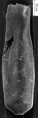 <i><i>Conochitina pachycephala</i></i><br />Ikla borehole, 234.00 m, Jaagarahu Stage ( 350-27)