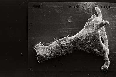 <i><i>Ancyrochitina tomentosa</i> | Ancyrochitina cf. tomentosa</i><br />Ruhnu 500 borehole, 404.20 m, Jaagarahu Stage ( 754-557)