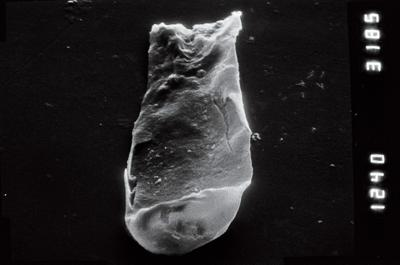 <i><i>Plectochitina</i> | Plectochitina cf. spongiosa</i><br />Viki borehole, 226.40 m, Juuru Stage ( 754-944)