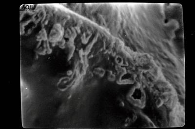 <i><i>Ancyrochitina</i> | Ancyrochitina sp.</i><br />Seliste 173 borehole, 343.50 m, Juuru Stage ( 754-1774)
