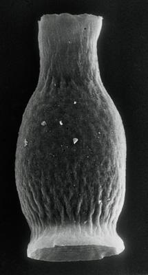<i><i>Armoricochitina granulifera</i></i><br />Imavere 73-T borehole, 215.70 m, Idavere Substage ( 190-15)