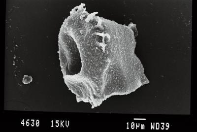 <i><i>Ancyrochitina ansarviensis</i> | Ancyrochitina aff. ansarviensis</i><br />Gussev 1 borehole, Kaliningrad oblast, 1425.30 m, Paadla Stage ( 754-53)