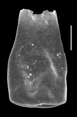 <i><i>Conochitina leviscapulae</i> | </i><br />Grötlingbo 1 borehole, Gotland, 358.80 m, Adavere Stage ( 688-44)