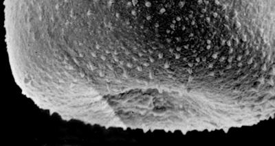 <i><i>Belonechitina postrobusta</i></i><br />Ikla borehole, 504.20 m, Juuru Stage ( 272-120)