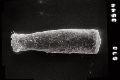 <i><i>Conochitina pachycephala</i> | Conochitina cf. pachycephala</i><br />Kihnu 526 borehole, 127.30 m, Jaagarahu Stage ( 754-804)