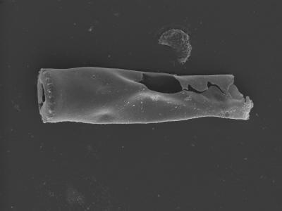 <i><i>Spinachitina</i> | Spinachitina sp.</i><br />Kolka 54 borehole, 632.70 m, Raikküla Stage ( 754-400)