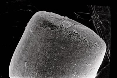 <i><i>Conochitina</i> | Conochitina sp. sp.</i><br />Ruhnu 500 borehole, 341.50 m, Jaagarahu Stage ( 754-699)