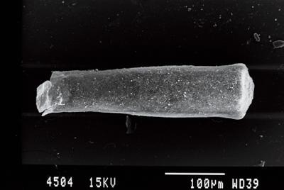 <i><i>Conochitina pachycephala</i></i><br />Gussev 1 borehole, Kaliningrad oblast, 1478.10 m, Rootsiküla Stage ( 754-3)