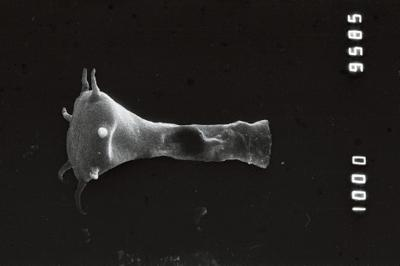<i><i>Ancyrochitina primitiva</i></i><br />Jaagarahu borehole, 55.10 m, Adavere Stage ( 754-212)