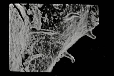 <i><i>Angochitina echinata</i> | Angochitina cf. echinata</i><br />Pavilosta 51 borehole, 564.40 m, Kaugatuma Stage ( 754-616)