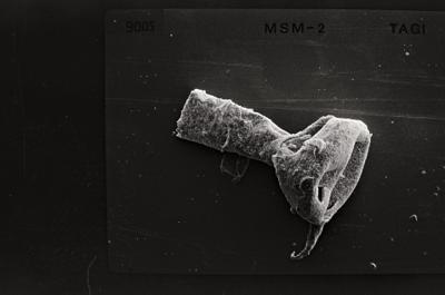 <i><i>Ancyrochitina primitiva</i>   Ancyrochitina cf. primitiva</i><br />Ruhnu 500 borehole, 333.00 m, Jaagarahu Stage ( 754-556)