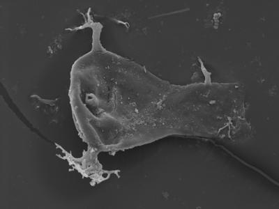 <i><i>Ancyrochitina desmea</i> | Ancyrochitina cf. desmea</i><br />Ventspils D-3 borehole, 631.00 m, Paadla Stage ( 754-377)