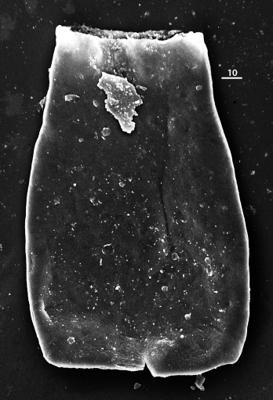 <i><i>Conochitina edjelensis</i></i><br />Aispute 41 borehole, 971.15 m, lower Silurian ( 345-13)