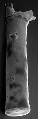 <i><i>Chitinozoa</i> | Conochitina sp. 4  Nestor, 1984</i><br />Sõru 400 borehole, 37.30 m, Adavere Stage ( 223-13)