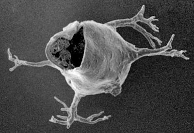 <i><i>Ancyrochitina rumbaensis</i></i><br />Varbla 502 borehole, 159.50 m, Adavere Stage ( 223-15)