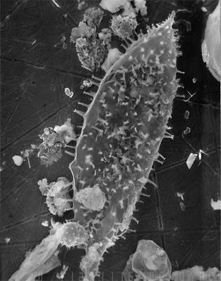 Dactylofusa lasnamaegiensis Uutela et Tynni, 1991, GIT 344-99