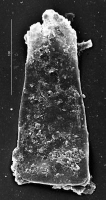 <i><i>Euconochitina electa</i></i><br />Aizpute 41 borehole, 975.45 m, lower Silurian ( 345-5)