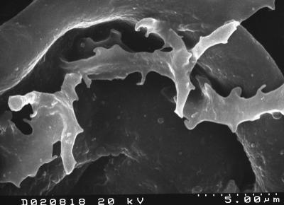 Peteinosphaeridium trifurcatum (Eisenack, 1931) Eisenack, 1969, TUG 1526-12
