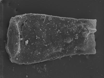 <i><i>Conochitina cribrosa</i> | Conochitina cribrosa?</i><br />Ohesaare borehole, 160.00 m, Jaagarahu Stage ( 754-304)
