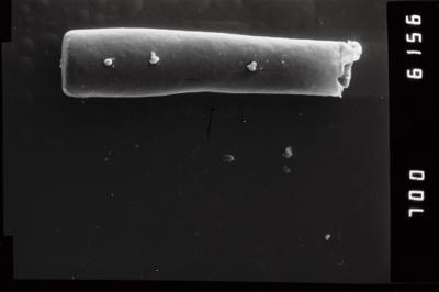 <i><i>Conochitina claviformis</i></i><br />Ohesaare borehole, 68.30 m, Kuressaare Stage ( 754-961)