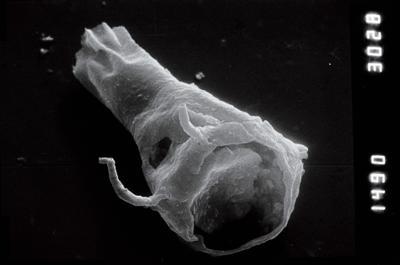 <i><i>Plectochitina</i>   Plectochitina aff. nodifera</i><br />Nagli 106 borehole, 676.00 m, Juuru Stage ( 754-877)
