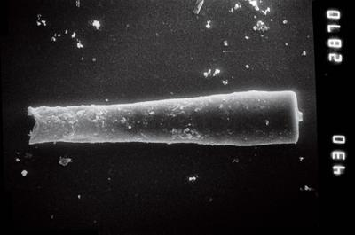 <i><i>Conochitina claviformis</i></i><br />Ruhnu 500 borehole, 392.80 m, Jaagarahu Stage ( 754-844)