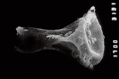<i><i>Plectochitina</i> | Plectochitina cf. pachyderma</i><br />Ruhnu 500 borehole, 359.25 m, Jaagarahu Stage ( 754-925)