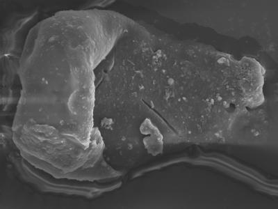 <i><i>Sphaerochitina</i> | Sphaerochitina sp.</i><br />Ohesaare borehole, 165.35 m, Jaagarahu Stage ( 754-325)
