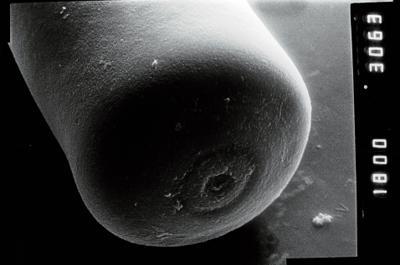 <i><i>Conochitina</i>   Conochitina cf. pachycephala</i><br />Ruhnu 500 borehole, 392.80 m, Jaagarahu Stage ( 754-1053)