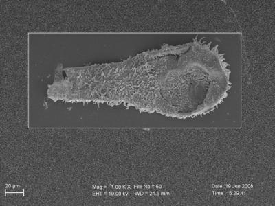 <i><i>Angochitina elongata</i> | Angochitina aff. elongata</i><br />Ohesaare borehole, 117.50 m, Paadla Stage ( 754-262)