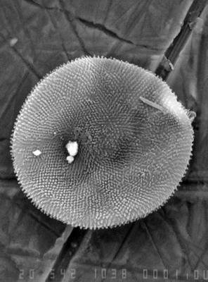 Lophosphaeridium regulare Uutela et Tynni, 1991, GIT 344-156